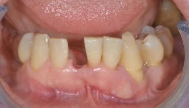 Odontoiatria adesiva settore anteriore