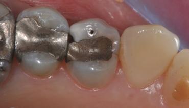 Intarsio adesivo premolare superiore
