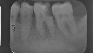 Urgenza molare inferiore