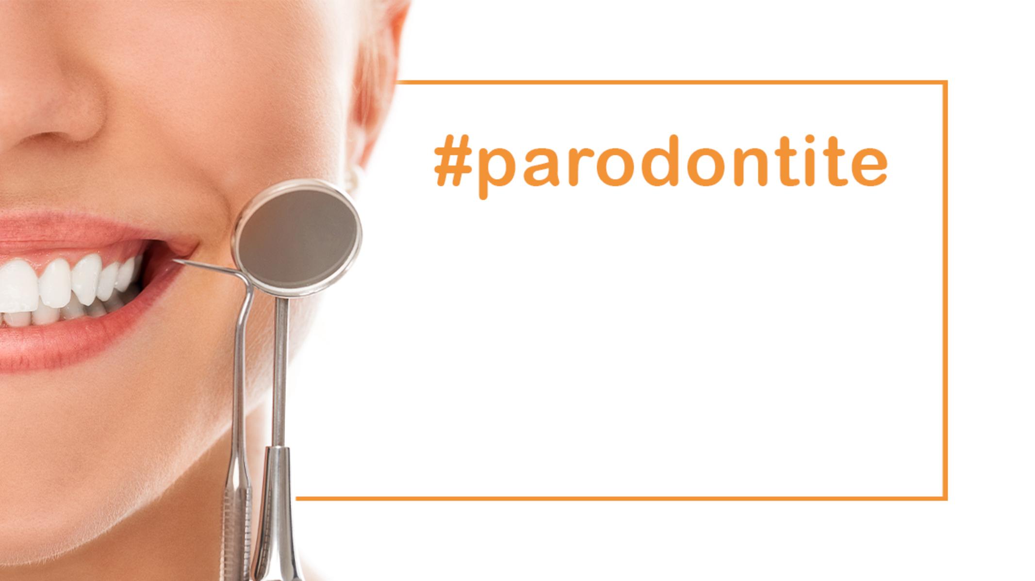 La parodontite: cause e terapie